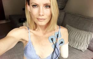"""Stuntfrau Olivia Jackson verlor bei einem """"Resident Evil""""-Setunfall ihren Arm"""