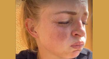 BTN: Josephine Welsch nach der Trennung
