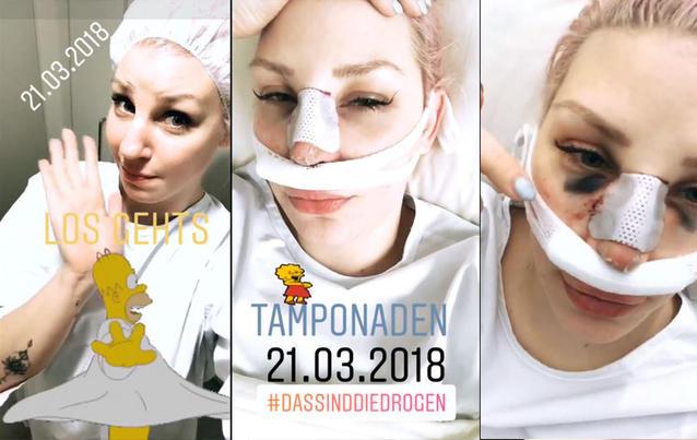 BTN-Paula: Laura Maack zeigt sich erstmals nach Nasen-OP! | Fotos