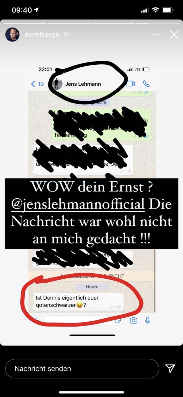 Dennis Aogo veröffentlichte in seiner Instagramstory eine rassistische Entgleisung von Jens Lehmann