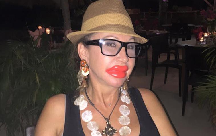 Carmen Geiss Lippen
