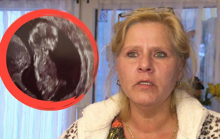 Silvia Wollny: Ultraschallbild | Baby