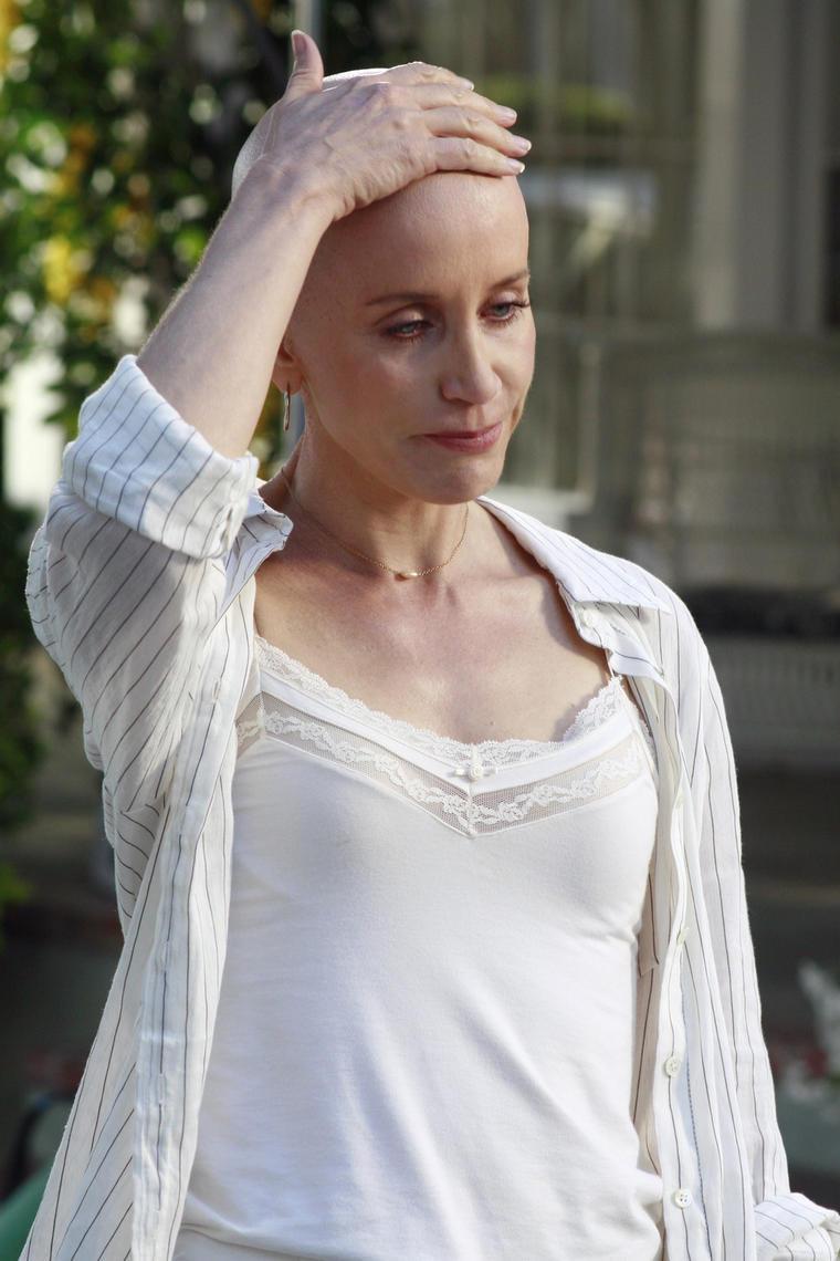 Felicity Huffmann Glatze